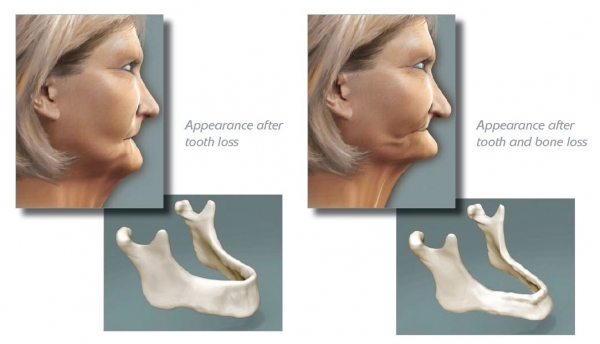600_Dentist Perth Implant Bone Graft
